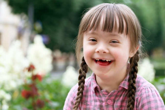Official figures badly underestimate number of Down Syndrome